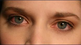 bloo-shot eyes contact lenses